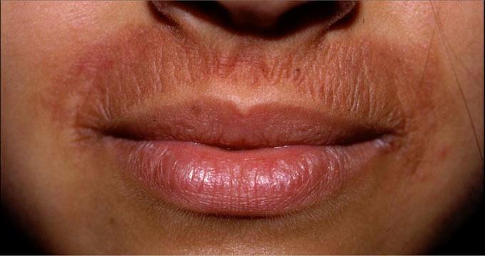 aloeterapia_dermatite_24cm