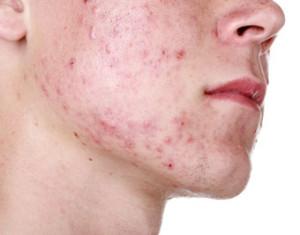 Aloe risolve l'acne a una ragazza 18enne. Il racconto della madre Maria Di Lorenzo
