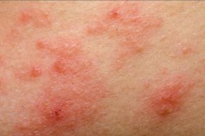Dermatite, ecco perché l'Aloe Vera facilita la guarigione